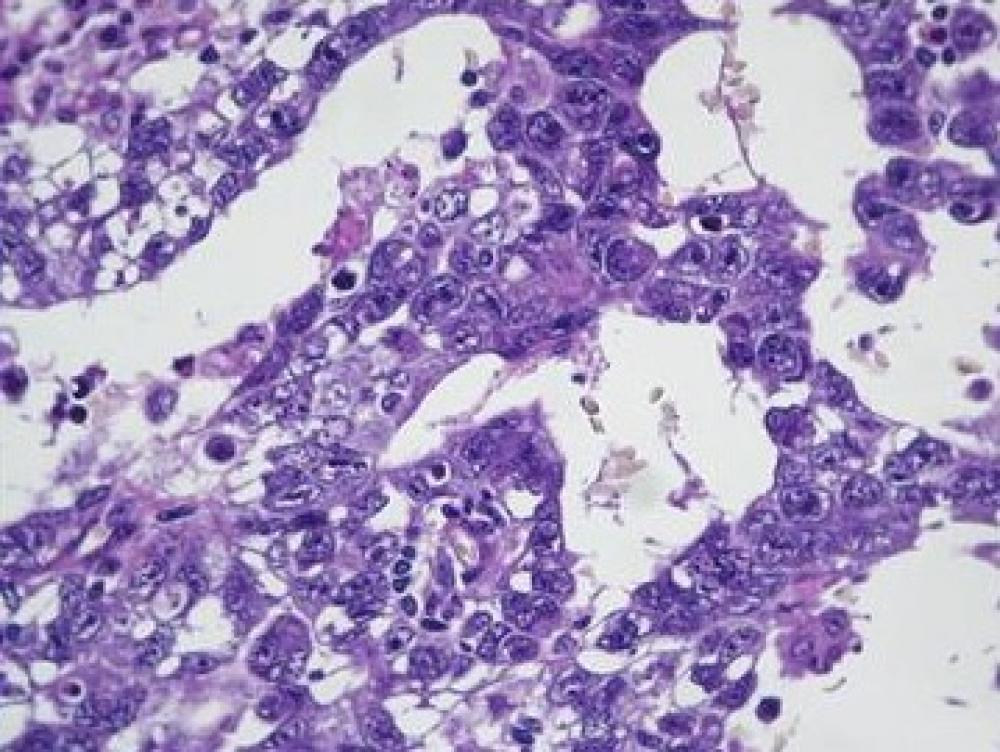 Testículo, Carcinoma Embrionário