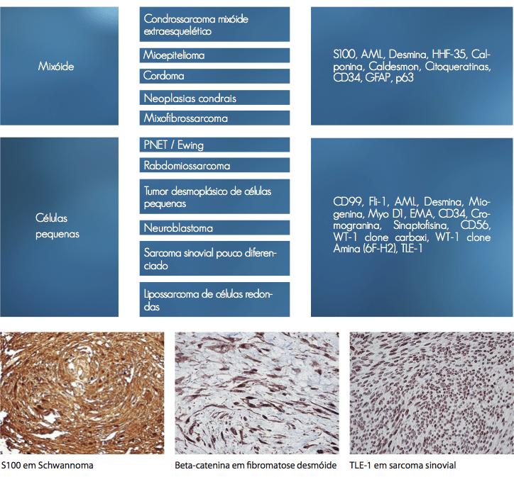Tumores de Partes Moles 2